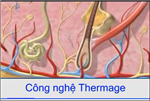 Thermage - Chia sẻ kinh nghiệm về hiệu quả điều trị